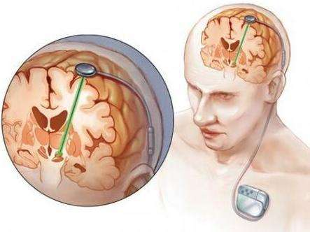 电线治绝症--帕金森的治疗手段